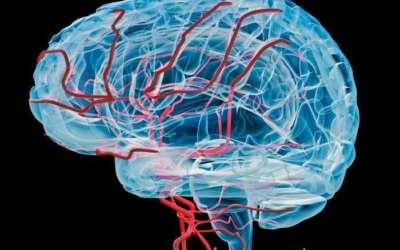 10 edzés nélkül töltött nap csökkentheti az agy vérkeringését (Traci Pedersen)